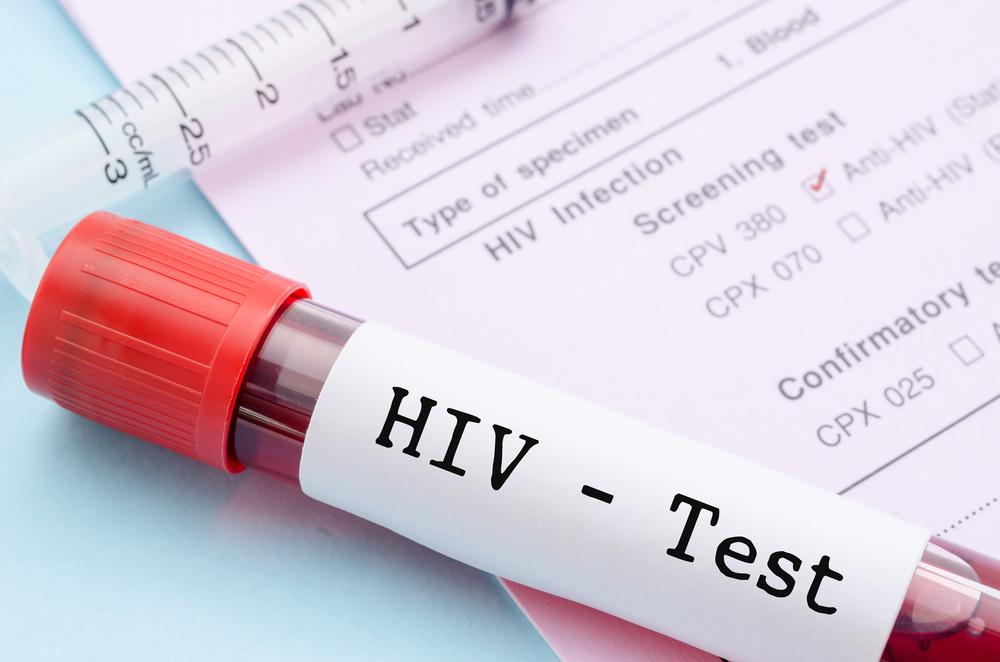 VIH datant